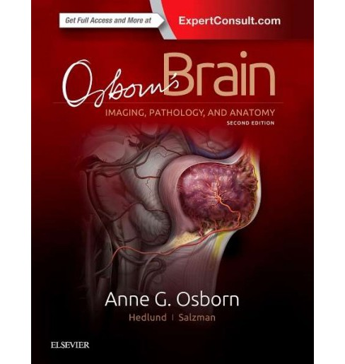 Osborn's Brain : Imaging, Pathology, and Anatomy (Hardcover) (M.D. Anne G. Osborn & Gary L. Hedlund & - image 1 of 1