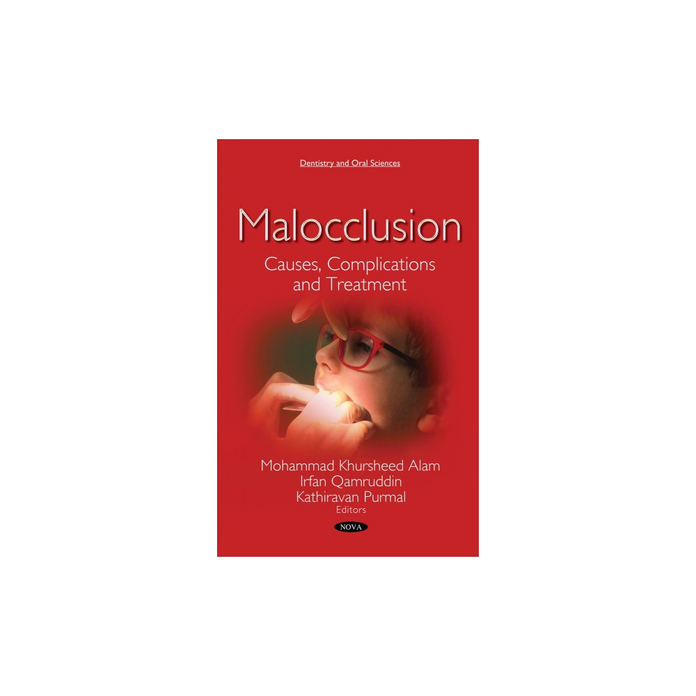 Malocclusion : Causes, Complications and Treatment - (Paperback)